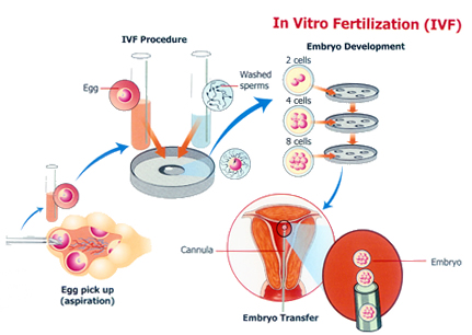 assisted fertilization techniques Medically-assisted procreation or in vitro fertilization (ivf), represents a method of assisted reproductive technology  techniques & methods.